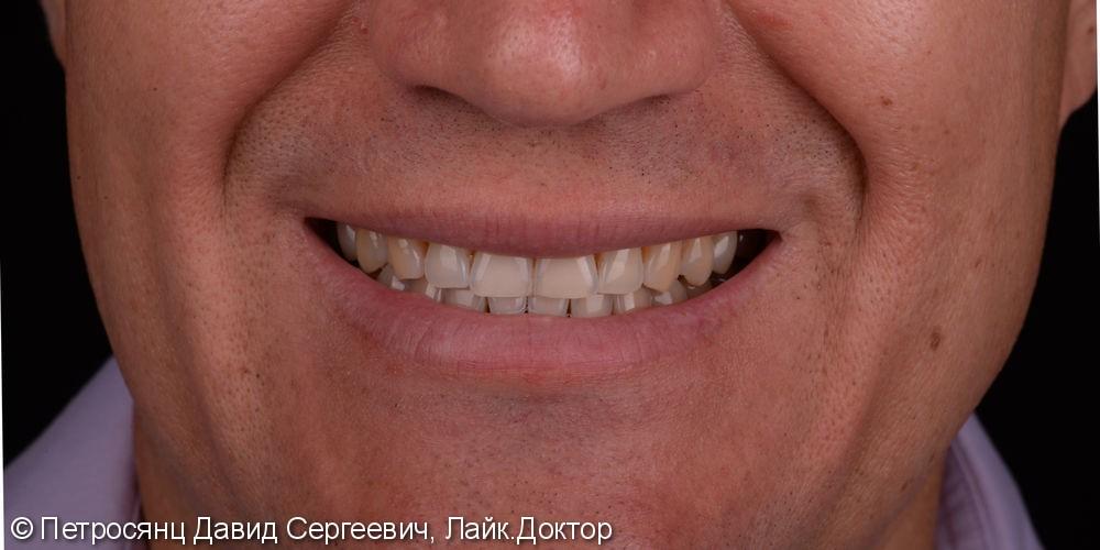 Отбеливание зубов ZOOM 4, до и после отбеливания - фото №1