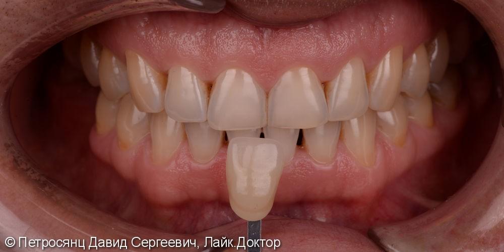 Отбеливание зубов ZOOM 4, до и после отбеливания - фото №2