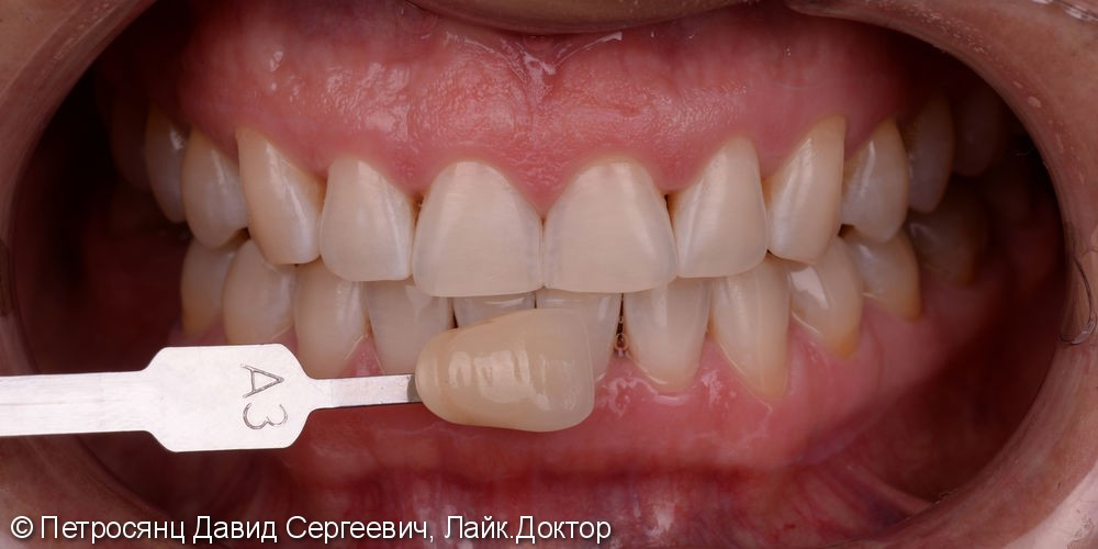 Отбеливание зубов ZOOM 4, до и после отбеливания - фото №3