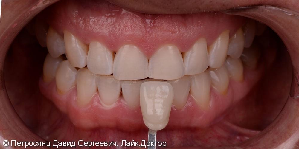 Отбеливание зубов ZOOM 4, до и после отбеливания - фото №4
