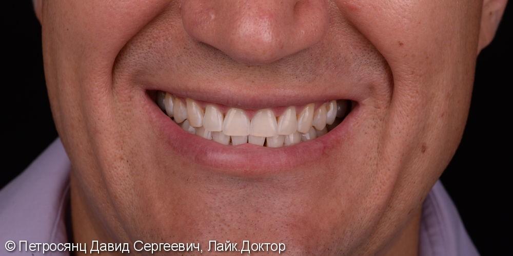 Отбеливание зубов ZOOM 4, до и после отбеливания - фото №5