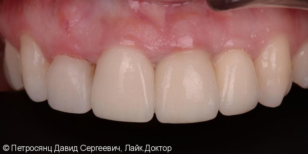 Имплантация в области центрального резца, удаление бокового резца и цельно-керамическая коронка - фото №4