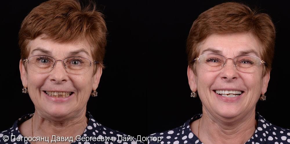 Отбеливание зубов Philips ZOOM 4 у пожилой женщины - фото №1