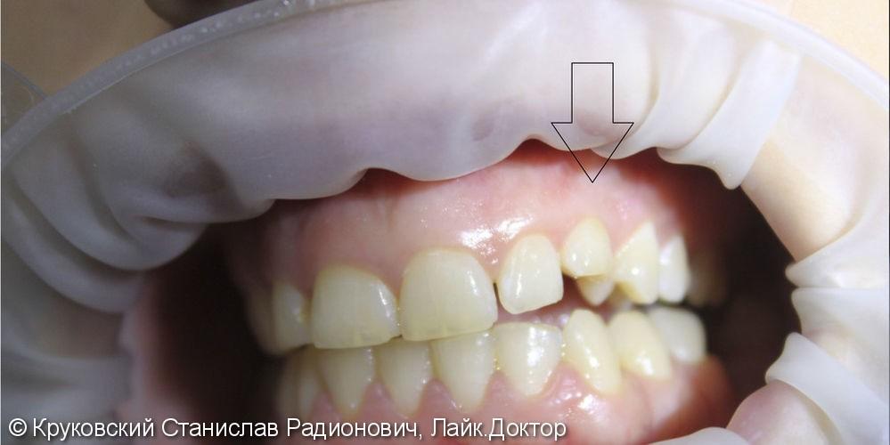 Эстетическая реставрация молочного зуба 63, до и после - фото №1
