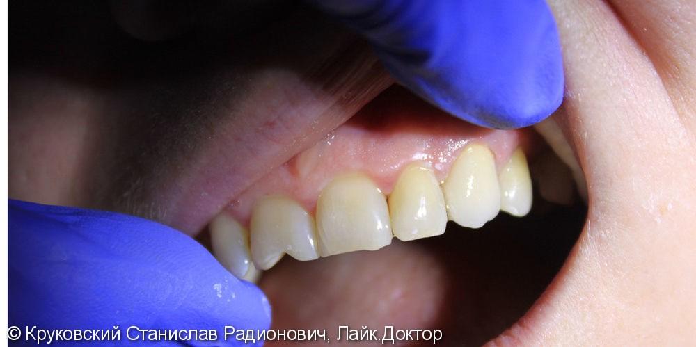 Протезирование металлокерамикой зуб 23, до и после - фото №2