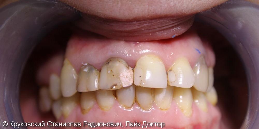 Тотальное протезирование зубов верхней челюсти, до и после - фото №1