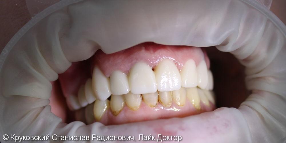 Тотальное протезирование зубов верхней челюсти, до и после - фото №2