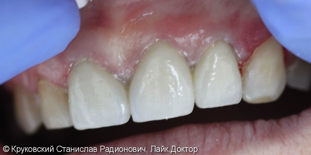 Протезирование металлокерамикой трех зубов подряд 11, 21, 22 - фото №2