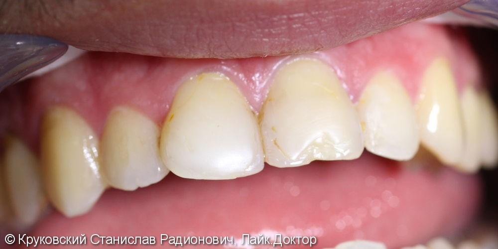 Кариес дентина четырех передних зубов 12, 11, 21, 22 + виниры: до и после - фото №1