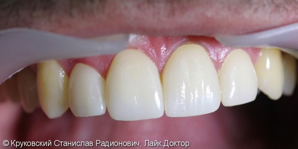 Кариес дентина четырех передних зубов 12, 11, 21, 22 + виниры: до и после - фото №2