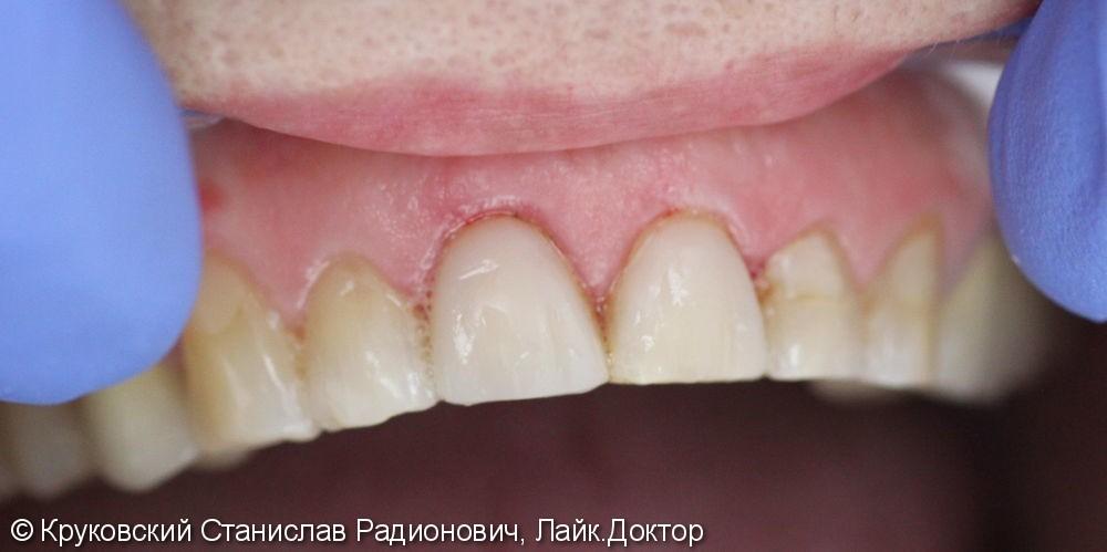 Эстетическая реставрация двух передних зубов 11, 21, до и после - фото №2