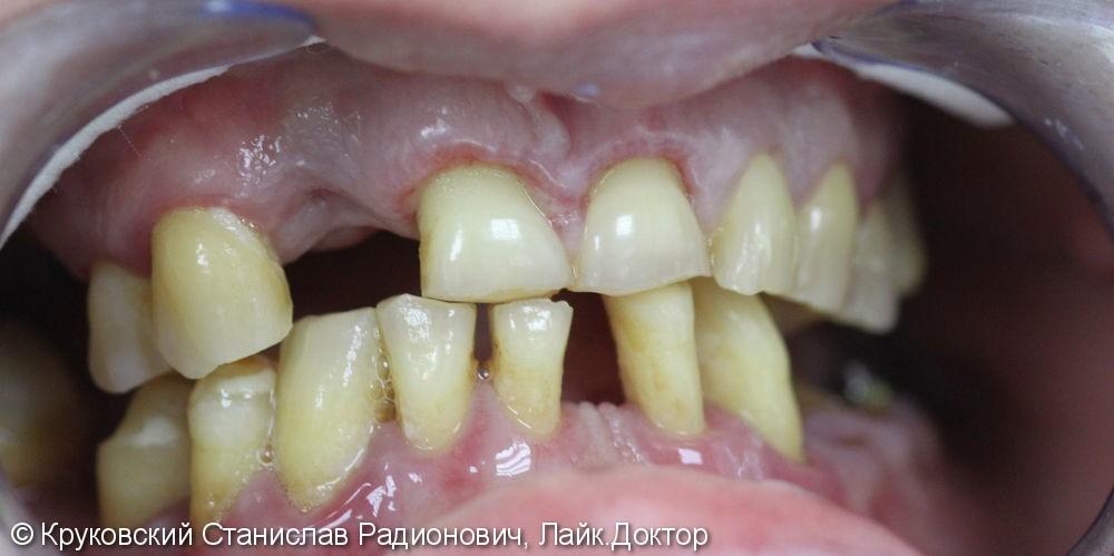Протезирование оксидом циркония (верхняя челюсть) - фото №1