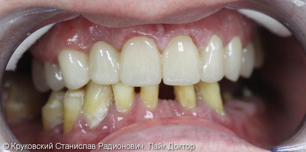 Протезирование оксидом циркония (верхняя челюсть) - фото №2