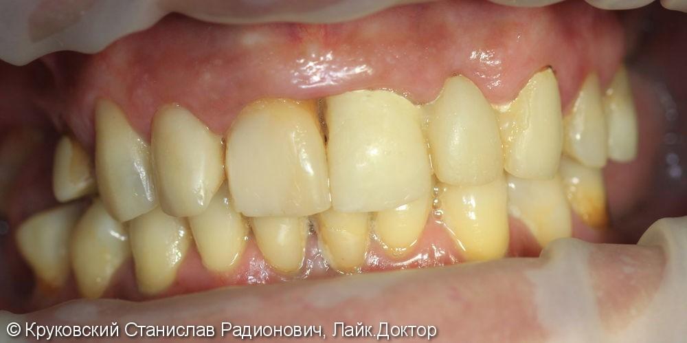 Тотальное протезирование верхней челюсти - фото №1
