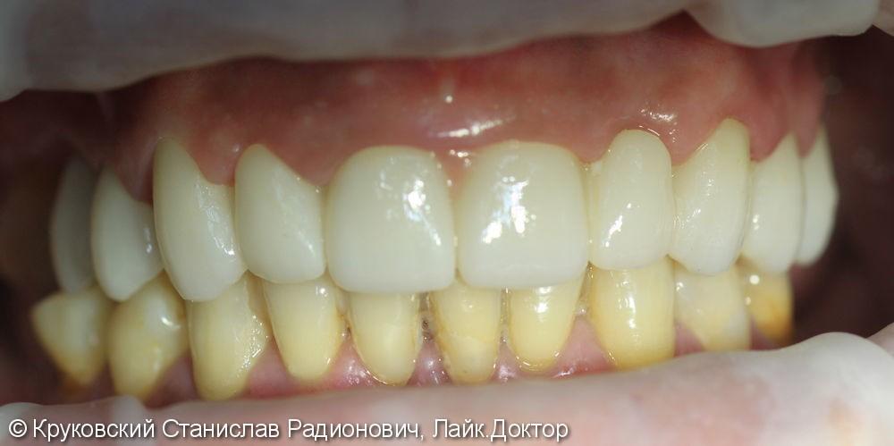 Тотальное протезирование верхней челюсти - фото №3