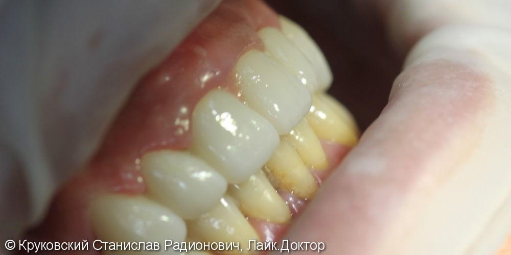 Тотальное протезирование верхней челюсти - фото №4