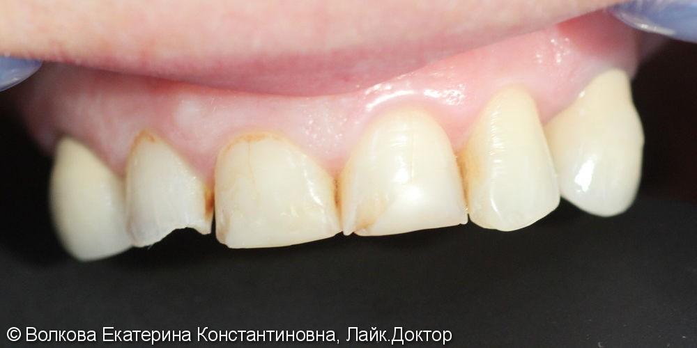 Эстетическая реставрация четырех зубов: 12,11,21,22, до и после - фото №1