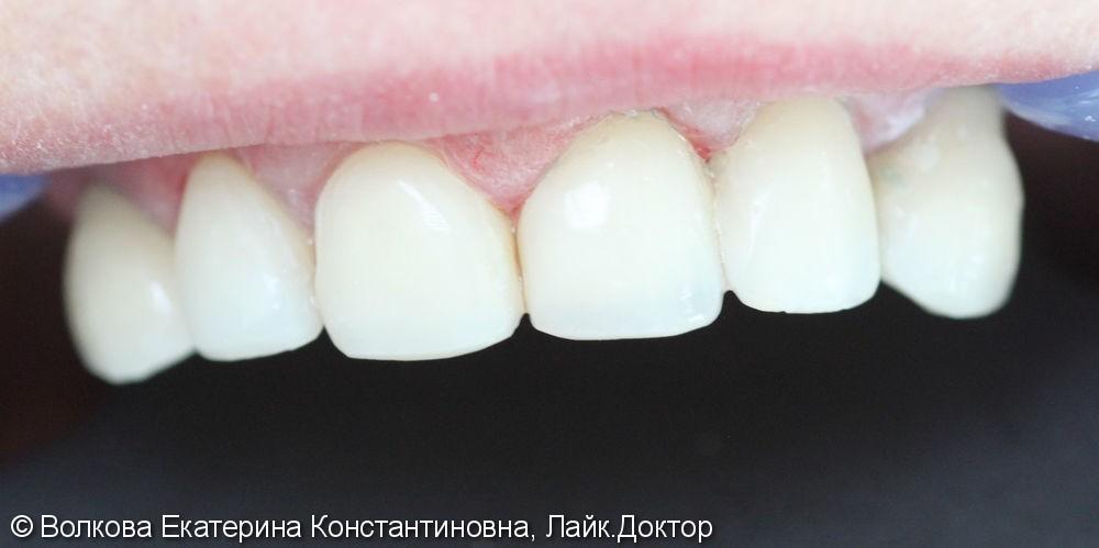 Эстетическая реставрация четырех зубов: 12,11,21,22, до и после - фото №2