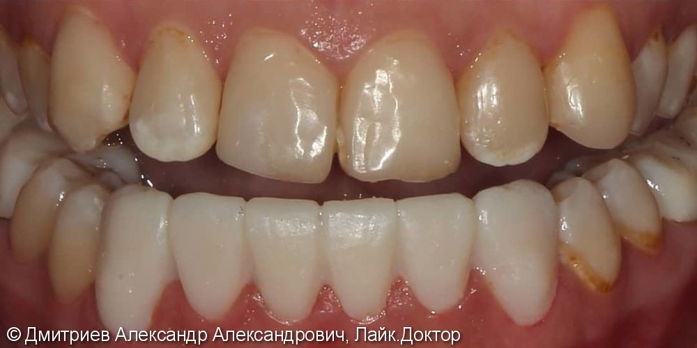 Коронки E.мах на передние зубы - фото №1