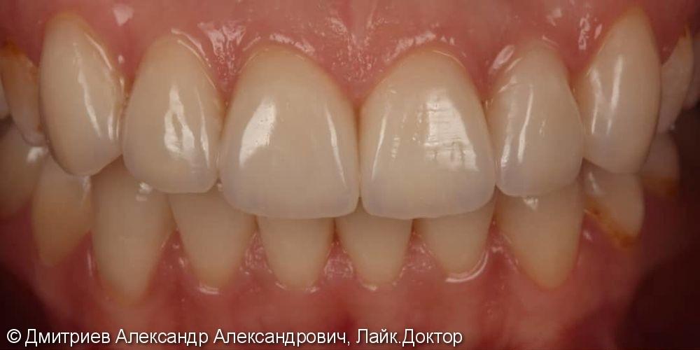 Коронки E.мах на передние зубы - фото №2
