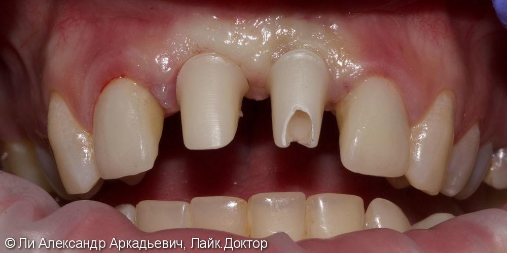 Имплантация зубов во фронтальном отделе - фото №1