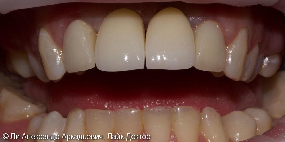 Имплантация зубов во фронтальном отделе - фото №2