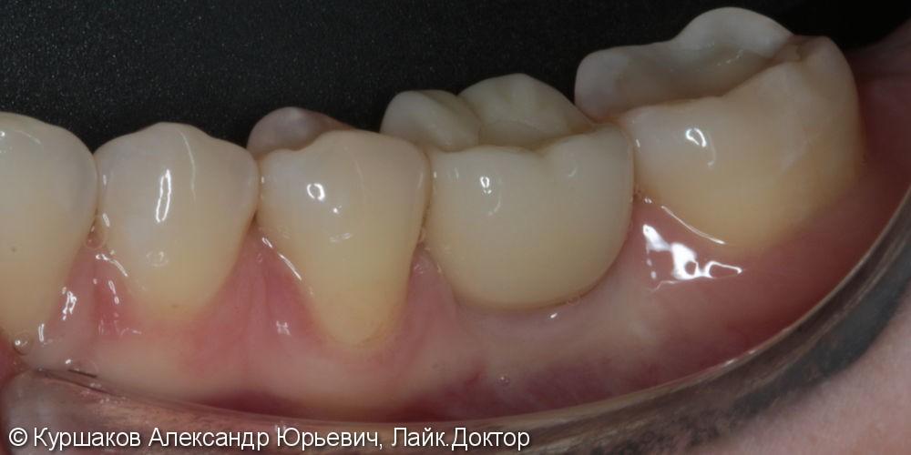 Протезирование на имплантах коронками из диоксида циркония - фото №6