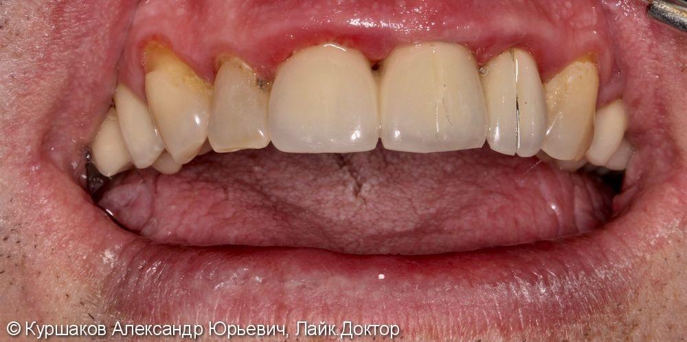 Восстановление красивой улыбки. Установка керамических коронок с опорой на импланты - фото №1
