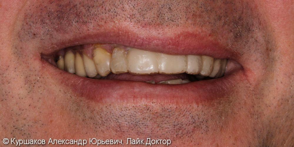 Восстановление красивой улыбки. Установка керамических коронок с опорой на импланты - фото №4