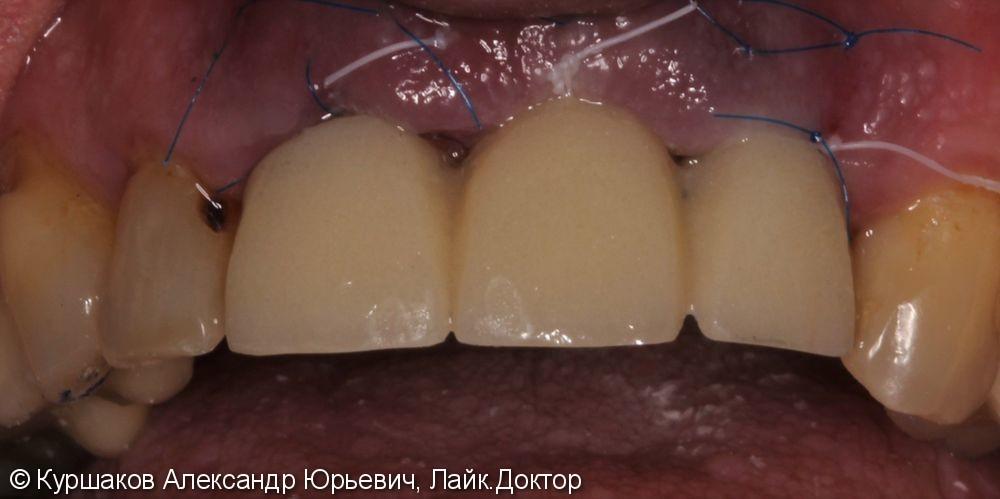Восстановление красивой улыбки. Установка керамических коронок с опорой на импланты - фото №6