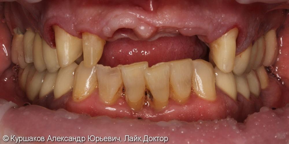 Восстановление красивой улыбки. Установка керамических коронок с опорой на импланты - фото №7