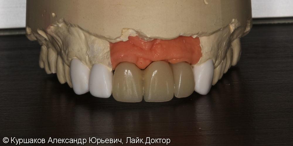 Восстановление красивой улыбки. Установка керамических коронок с опорой на импланты - фото №8