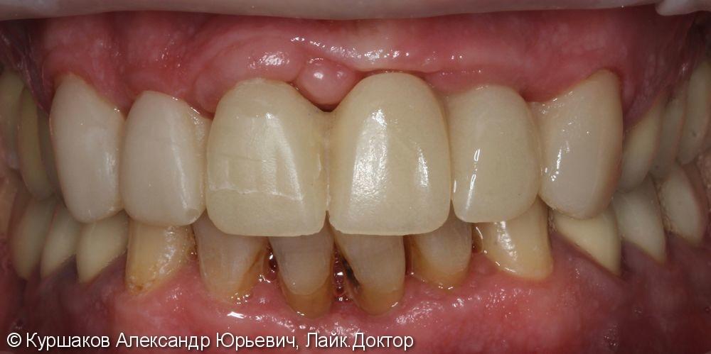 Восстановление красивой улыбки. Установка керамических коронок с опорой на импланты - фото №9