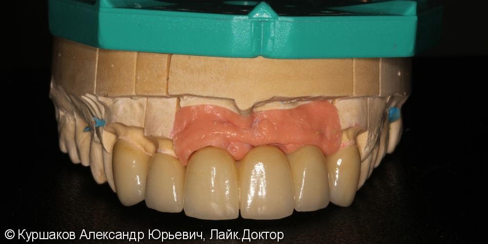 Восстановление красивой улыбки. Установка керамических коронок с опорой на импланты - фото №10