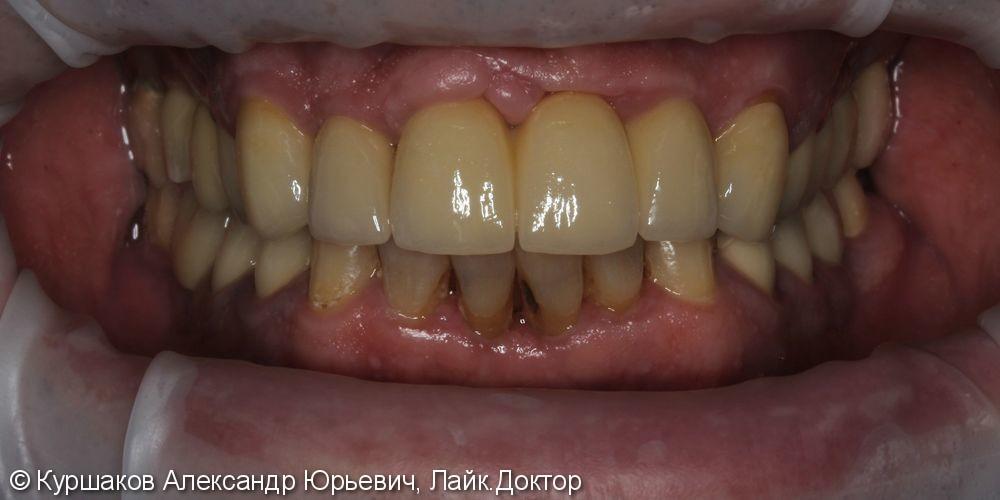 Восстановление красивой улыбки. Установка керамических коронок с опорой на импланты - фото №11