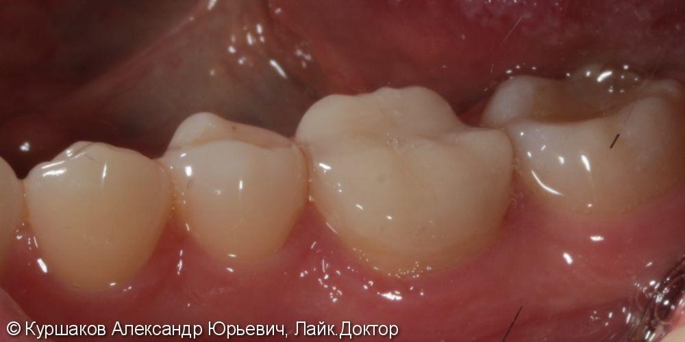 Лечение вторичного кариеса и установка накладки - фото №4