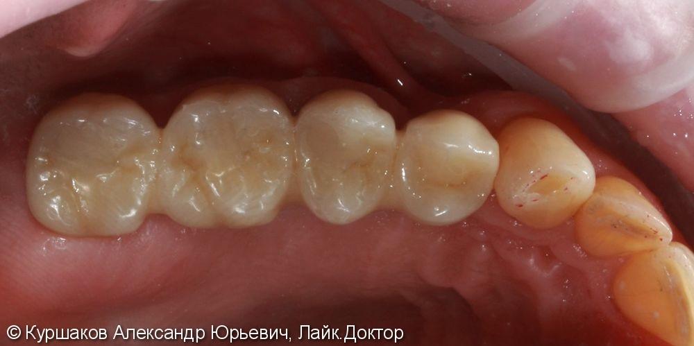 Имплантация трех зубов с установкой коронок на импланты - фото №5