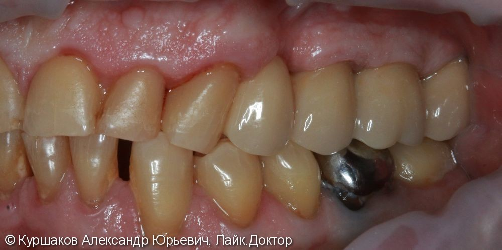 Имплантация трех зубов с установкой коронок на импланты - фото №6