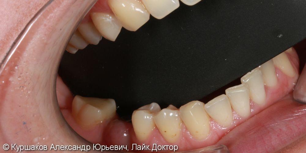 Реставрация зуба с установкой керамической коронки - фото №1