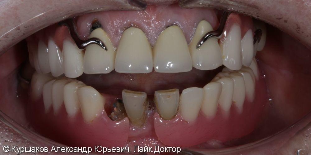 Протезирование нижней челюсти с опорой на импланты - фото №1