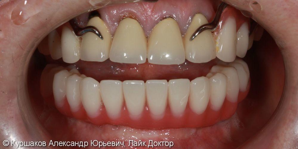 Протезирование нижней челюсти с опорой на импланты - фото №10