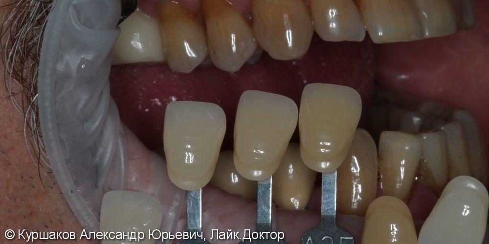 Восстановление зубов с использование технологии синус-лифтинга - фото №10