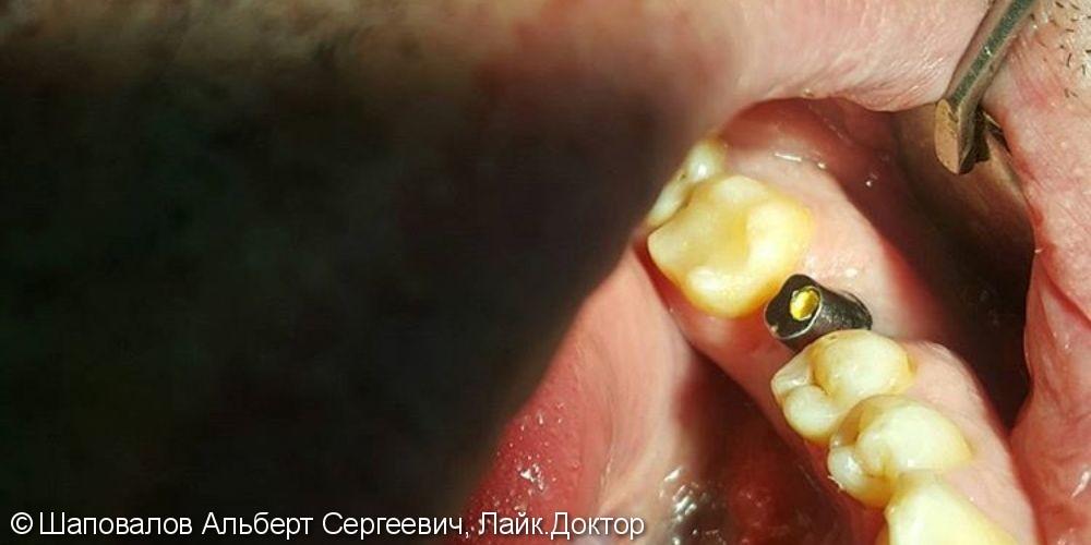 Имплантация и протезирование 3.6 зуба - фото №1