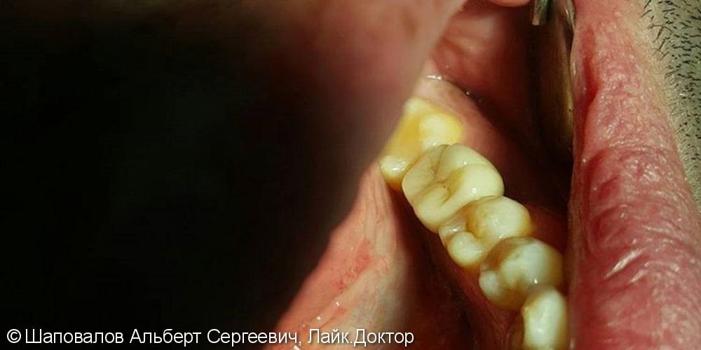 Имплантация и протезирование 3.6 зуба - фото №2