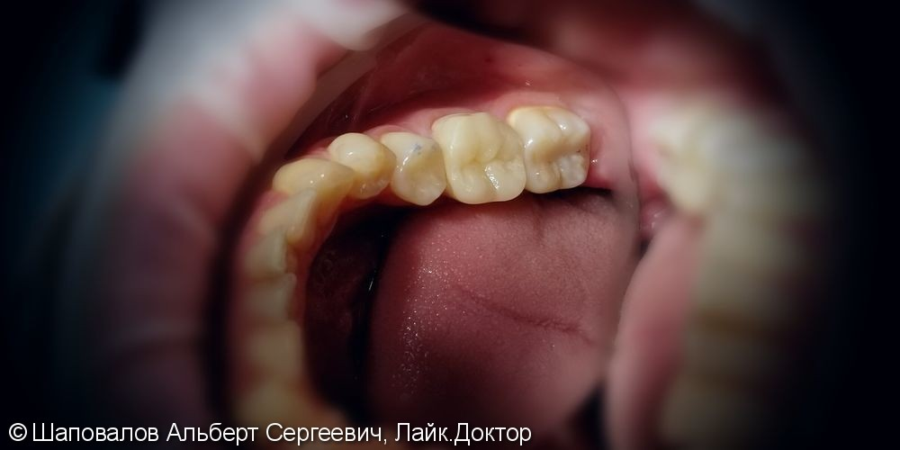 Восстановление разрушенного 3.6 зуба керамической накладкой - фото №2