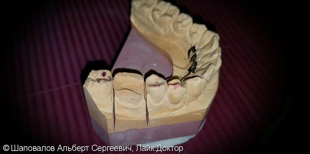 Восстановление разрушенного 3.6 зуба керамической накладкой - фото №3