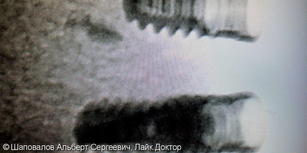 Удаление Имплантатов, установленных в сторонней клинике - фото №6
