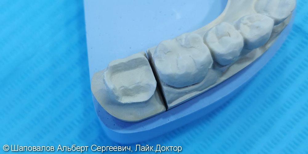 Восстановление жевательной поверхности 4.7 зуба - фото №2