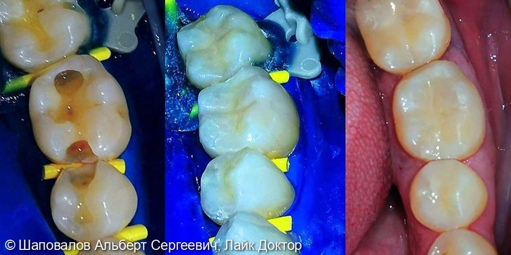 Лечение кариеса 3х зубов - фото №1