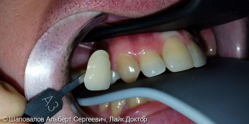 Протезирование зуба 1.4 - фото №4
